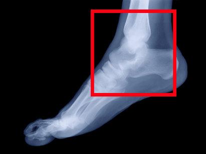 Гигрома стопы. Лечение