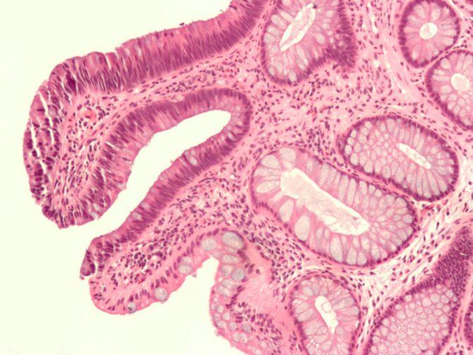 О том, что такое аденома?