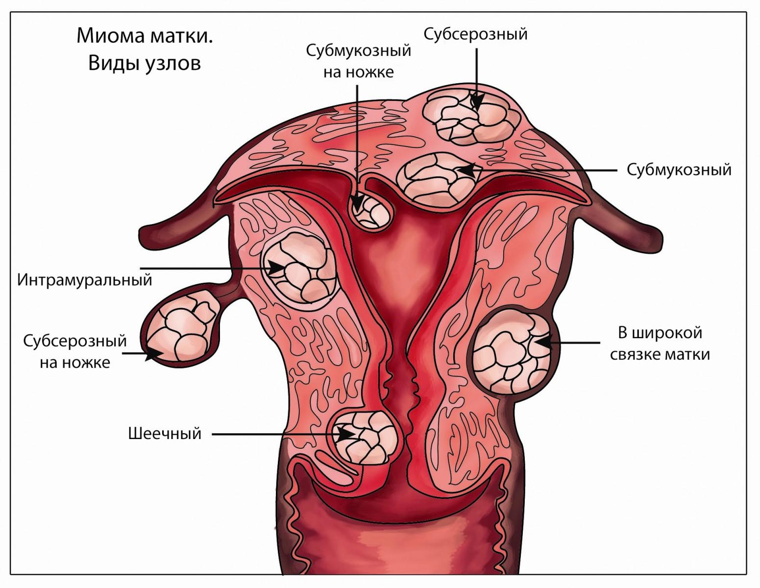 Миома матки — что это Симптомы и варианты лечения