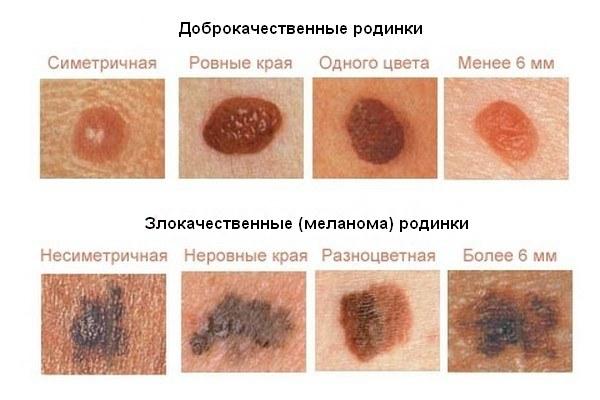 Бластома кожи