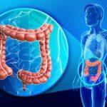 Бластома ректосигмоидного отдела толстой кишки