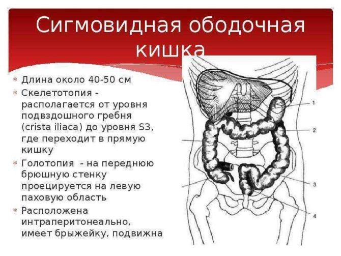 Что такое бластома сигмовидной кишки?