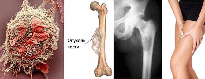 Бластома костей