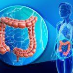 Бластома кишечника