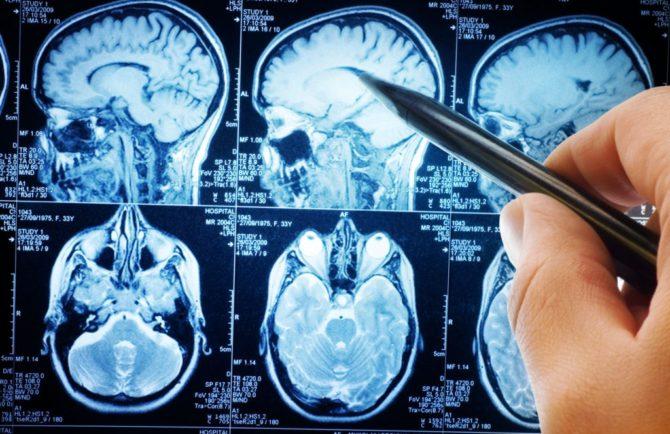 Бластома головного мозга