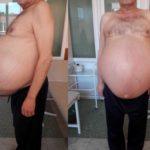 30 килограммовая опухоль