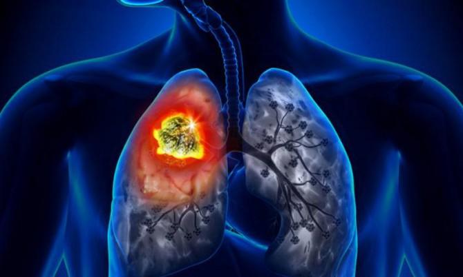 Рак легких 4 степени - симптомы и лечение
