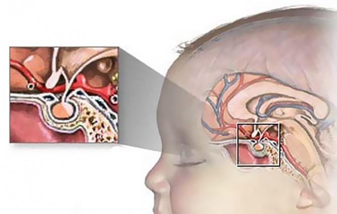 лечение рака головы у детей