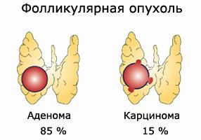 Фолликулярная опухоль щитовидки
