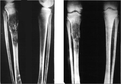 Изображение - Припухлость тазобедренного сустава Hondroblastoma-kosti