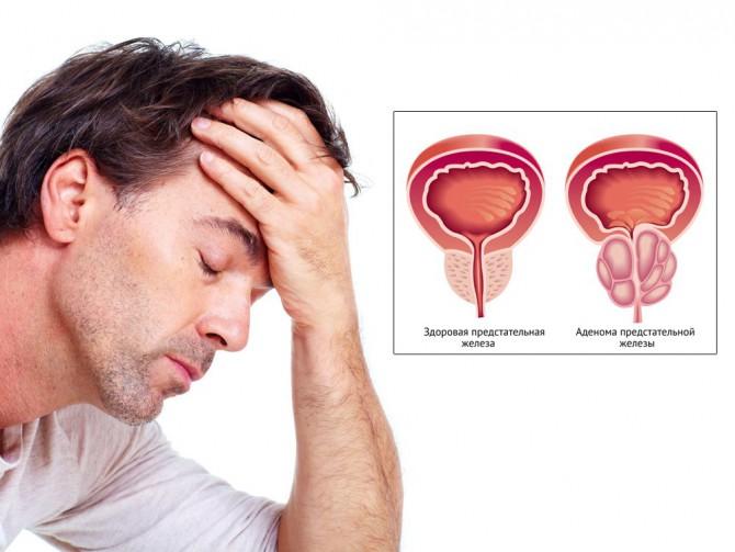 подмор лечение рака предстательной железы