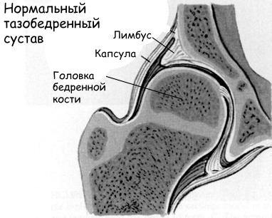 Изображение - Припухлость тазобедренного сустава Opuhol-kostej-1