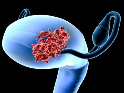 Рак эндометрия: симптомы и лечение