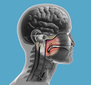 Опухоль носоглотки: виды и симптомы заболевания