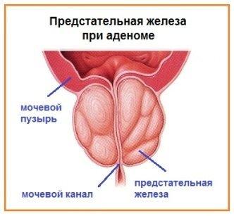 Простата после удаления опухоли аденомы