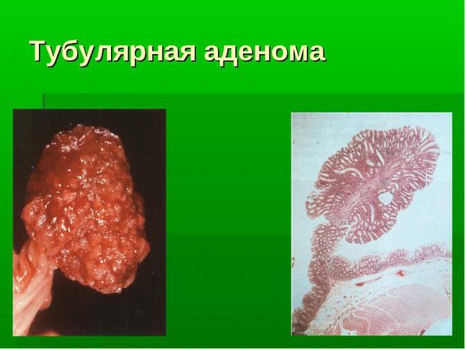 Тубулярная аденома толстой кишки
