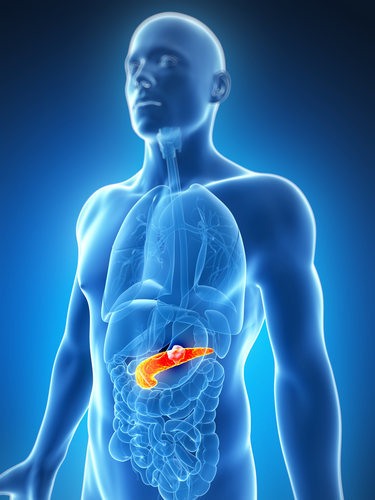 Симптомы доброкачественной опухоли поджелудочной железы