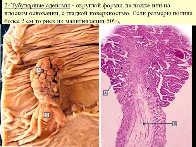 Ворсинчатая аденома с очагами дисплазии