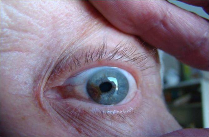 меланома хориоидеи глаза лечение