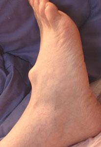 Липома на ноге
