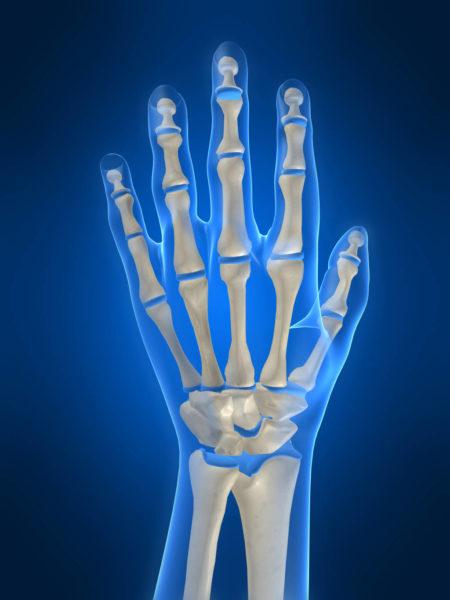 Лечение народными средствами гигромы кисти руки