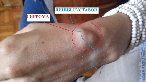 Санатории лечение артроза в казахстане