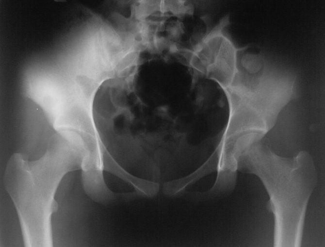 Остеома бедренной кости: симптомы и лечение