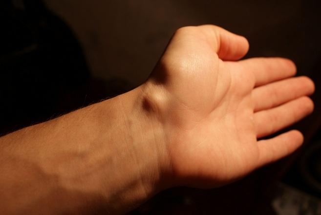 Гигрома левого лучезапястного сустава